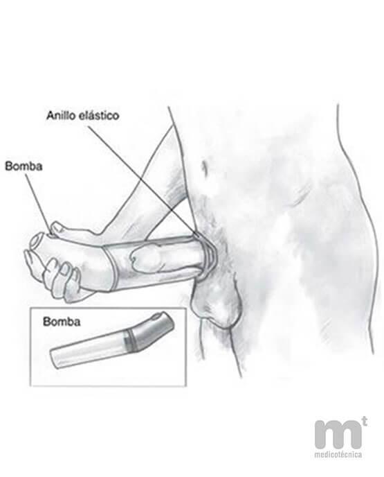 Cómo colocar una bomba de vacío en el pene