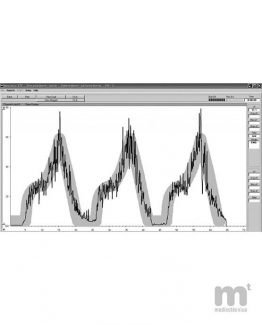 Aplicación del biofeedback Peritone