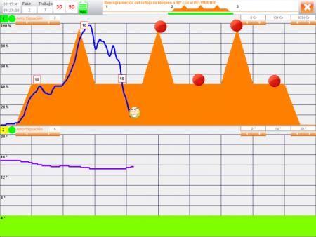 Pelvímetro PHENIX: Reeducación y Evaluación del Suelo Pélvico